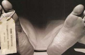 Imatge dels peus etiquetats d'un cadàver